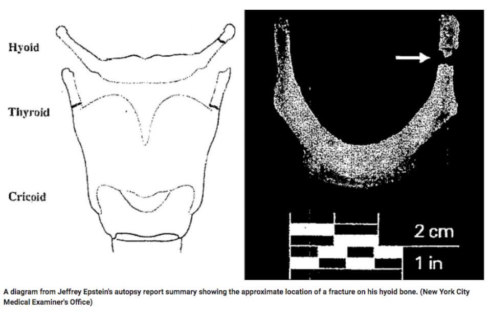 Epstein hyoid bone