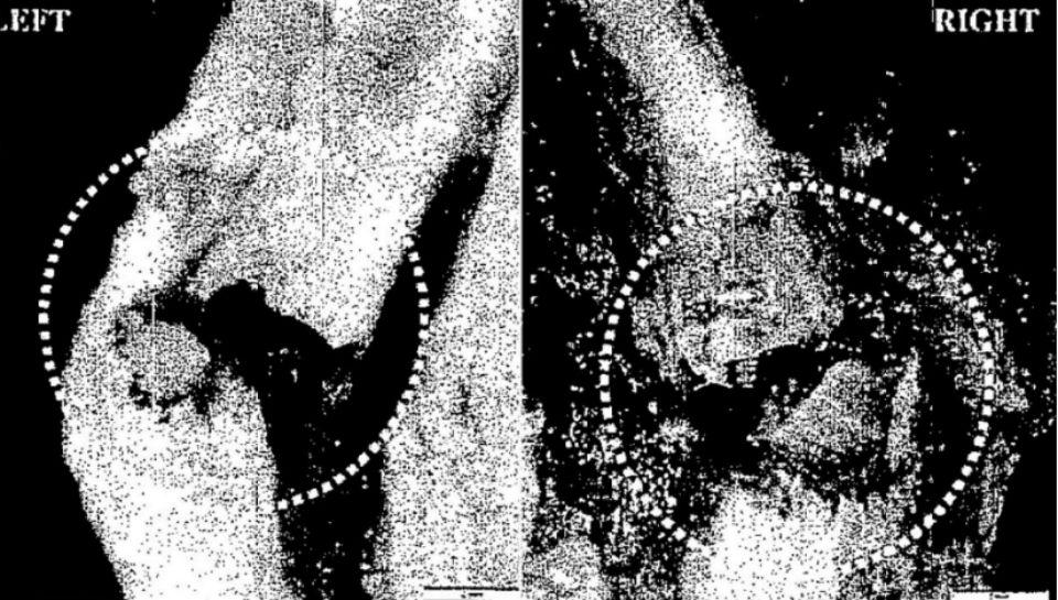 Epstein neck bone
