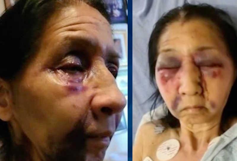 LA bus attack victim